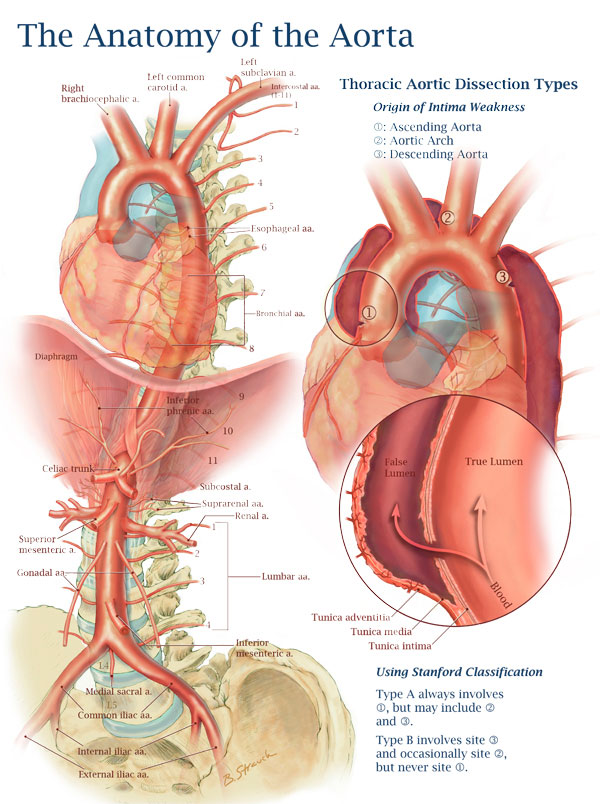 The Anatomy of the Aorta and Thoracic Aortic Dissection Types – Art ...