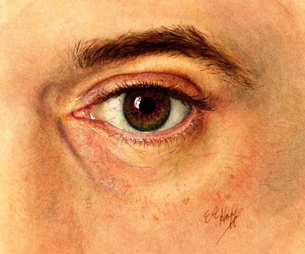 Me120751 Ophthalmological Illustration Art As Applied To Medicine