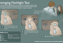 Swinging-Flashlight Test - First Aid. Illustrator. Illustration © Katelyn McDonald