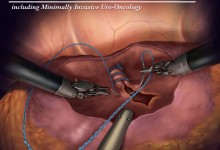 Editorial - Barbed suture for renorrhaphy during robot-assisted partial nephrectomy Illustration © Amy Dixon