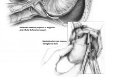 Thyroglossal Duct Cyst Removal. Graphite and Adobe Photoshop. Illustration © Suzanne Slattery