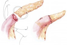 Tail of pancreas sutured into jejunum Illustration © Corinne Sandone, CMI