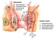 Abscesses and fistula tracts of the anorectum Illustration © Corinne Sandone, CMI