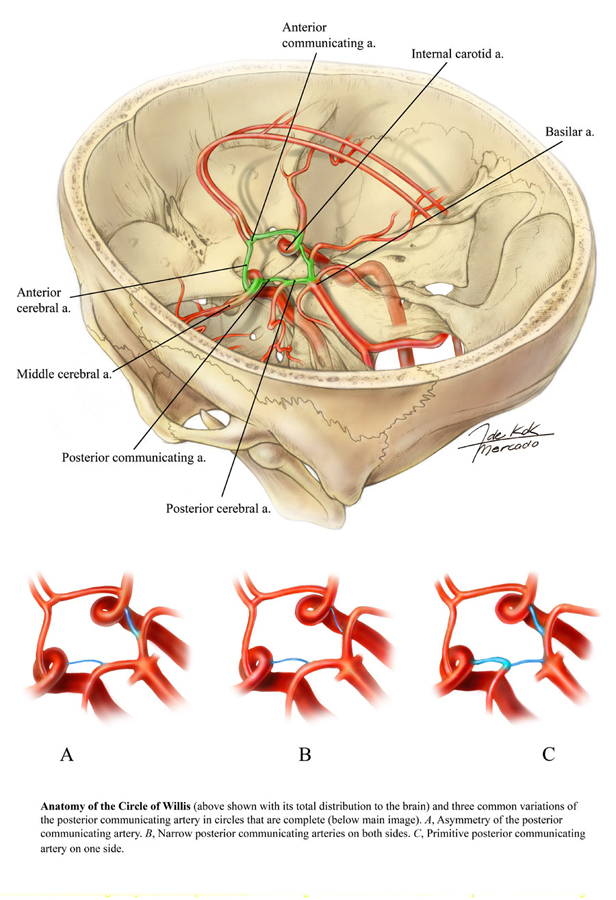 Anatomy Of The Circle Of Willis Art As Applied To Medicine