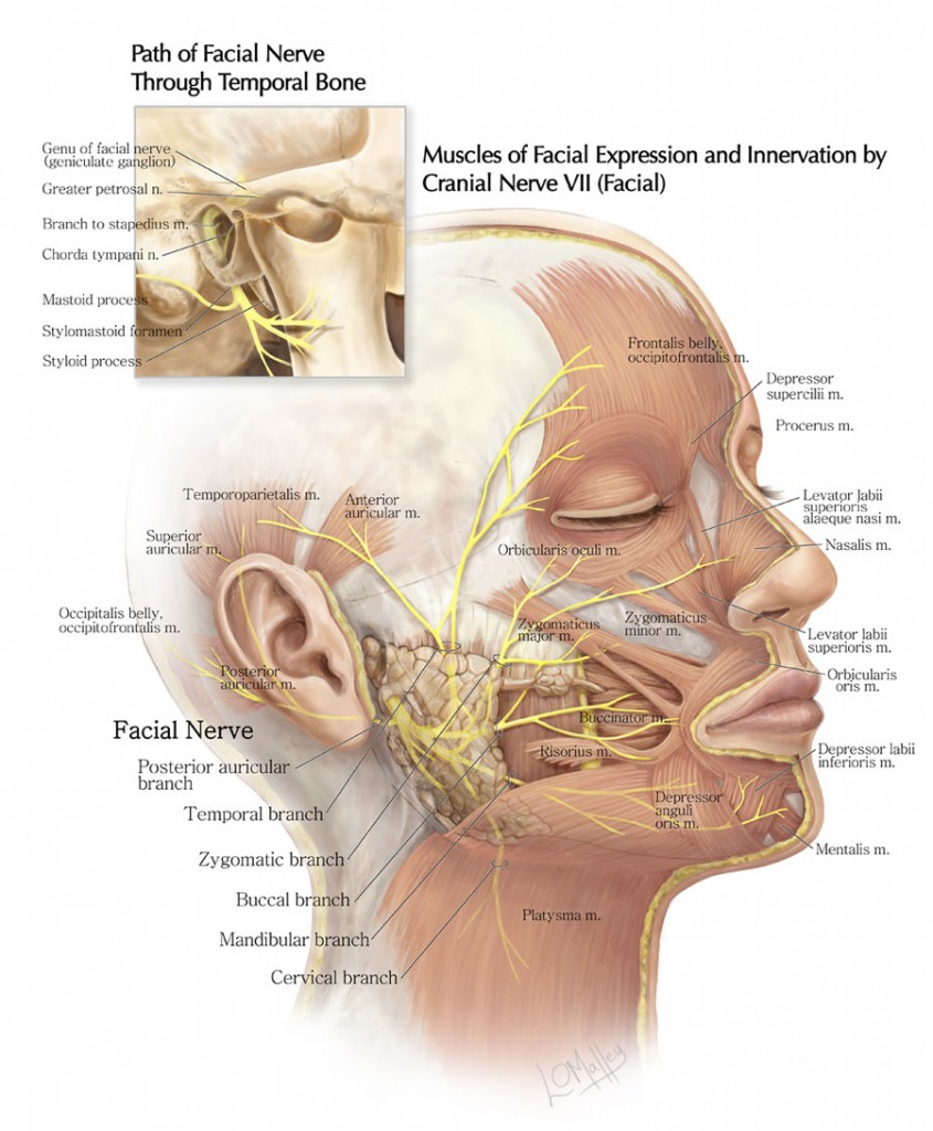 The Path of the Facial Nerve Through the Temporal Bone and the ...
