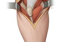 Surgical Guide of Posterior Elbow, Surgical atlas, Adobe Photoshop. Illustration © David A. Rini