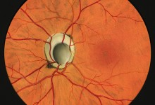 Fundus painting of a congenital coloboma of the optic nerve Illustration, Artist: Gary P. Lees, © JHU