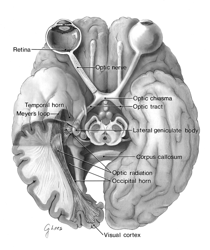 Anatomy of the Visual Pathways from the Temporal Horn to the Visual ...