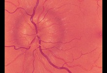 Fundus painting of Choroidoretinitis of the optic disc Illustration, Artist: Gary P. Lees, © JHU