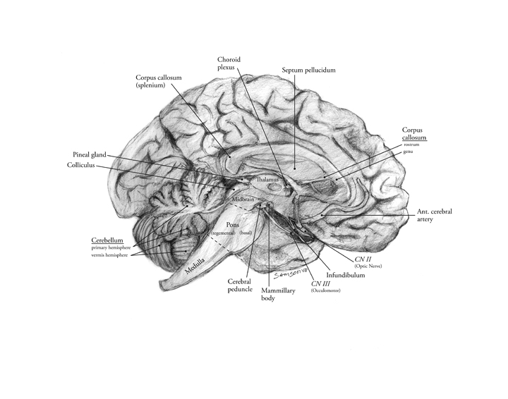 Sagittal View of the Brain – Art as Applied to Medicine
