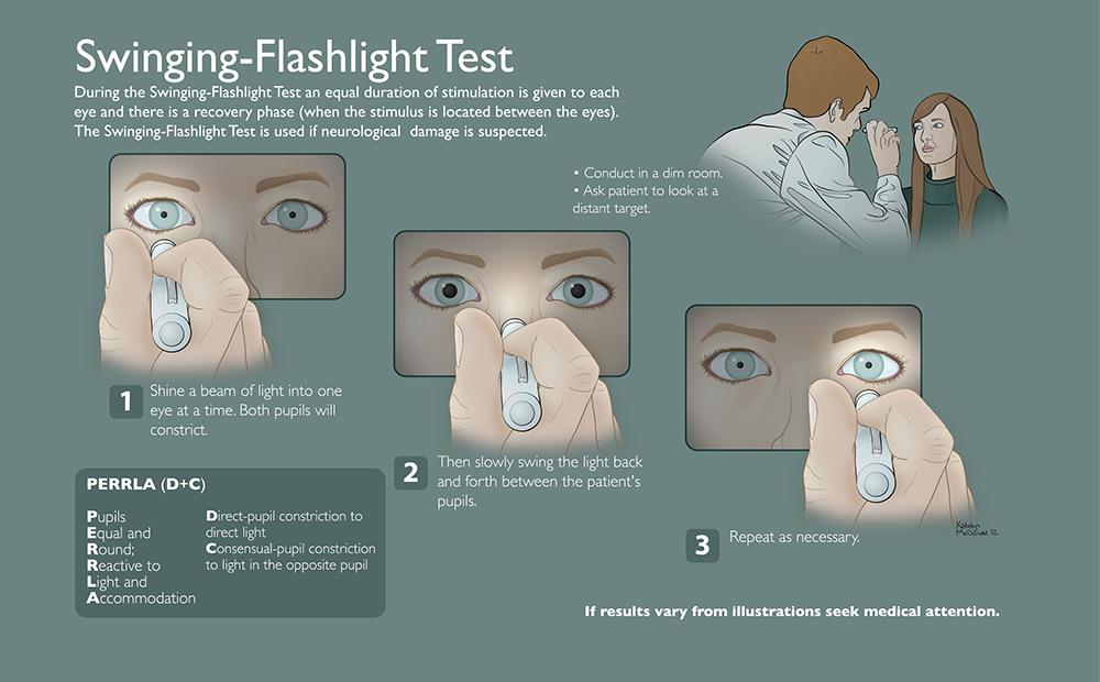 swinging flash light test 3